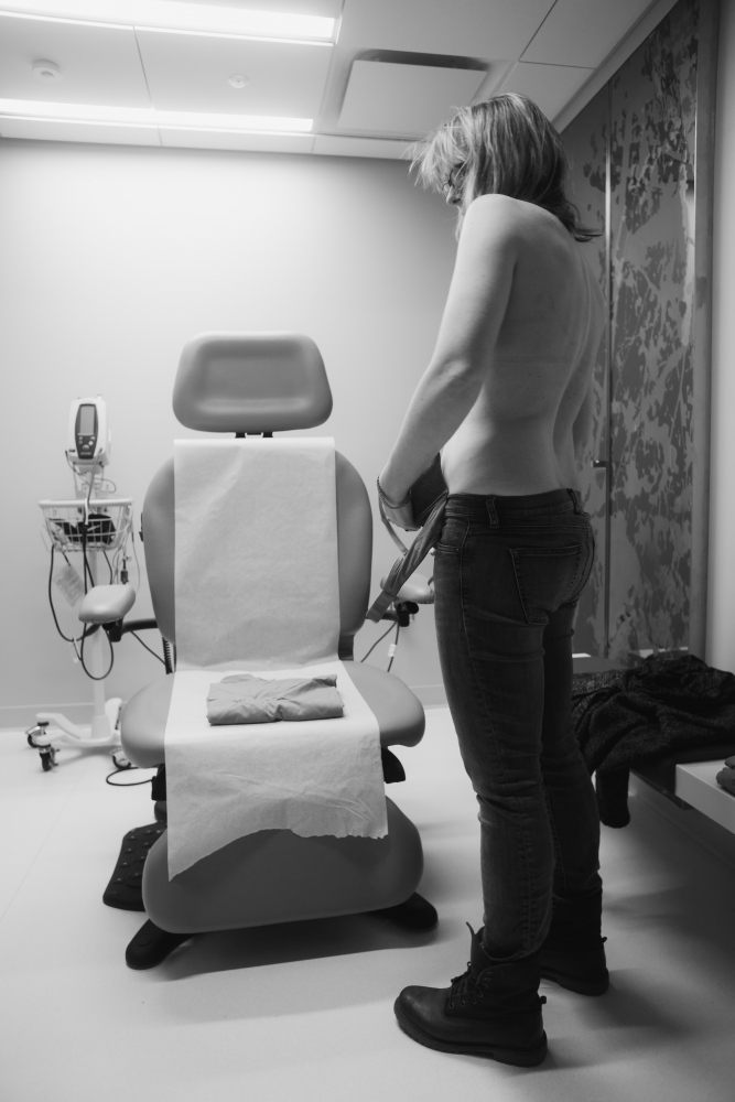 Anna undresses for the oncologist to inspect her breast post surgery.