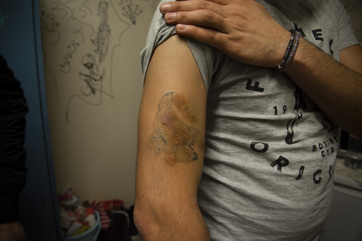 BERLIN | GERMANY | 2017-02-26 | A syrian refugee shows his tattoo. The burns on his arm bear witness to tortures he tolerated while he was illegally kept in Assad's notorious prisons.