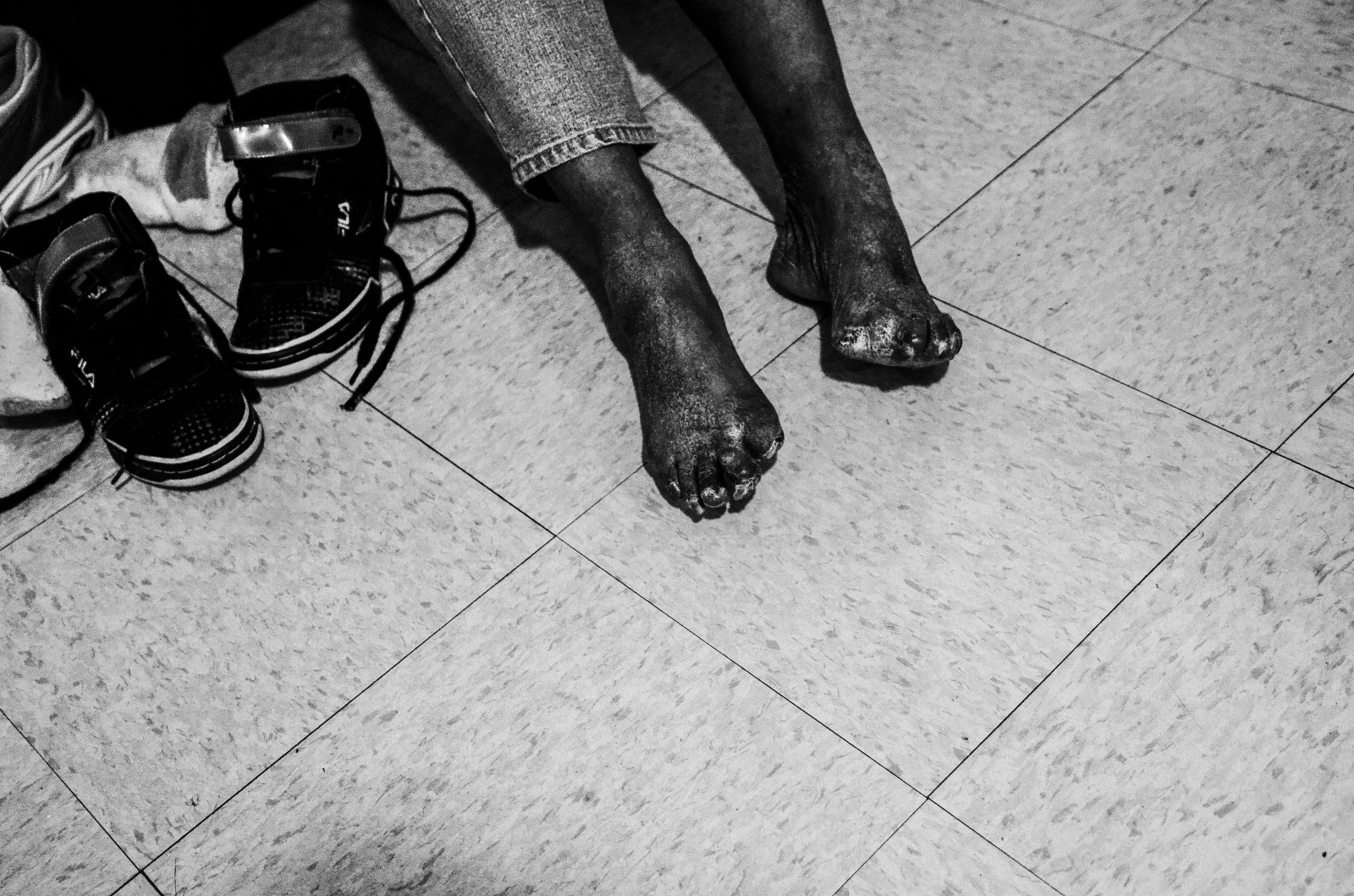 Wanda's toes were amputated due to contracting gangrene while using heroin.
