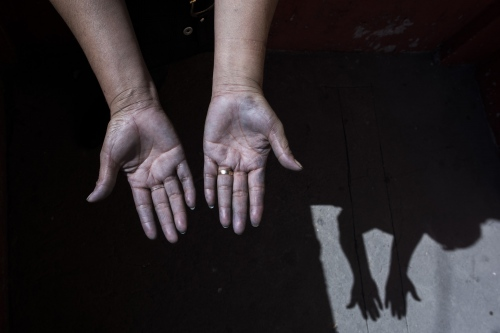 Blue-colored hands of a worker after a usual working day.