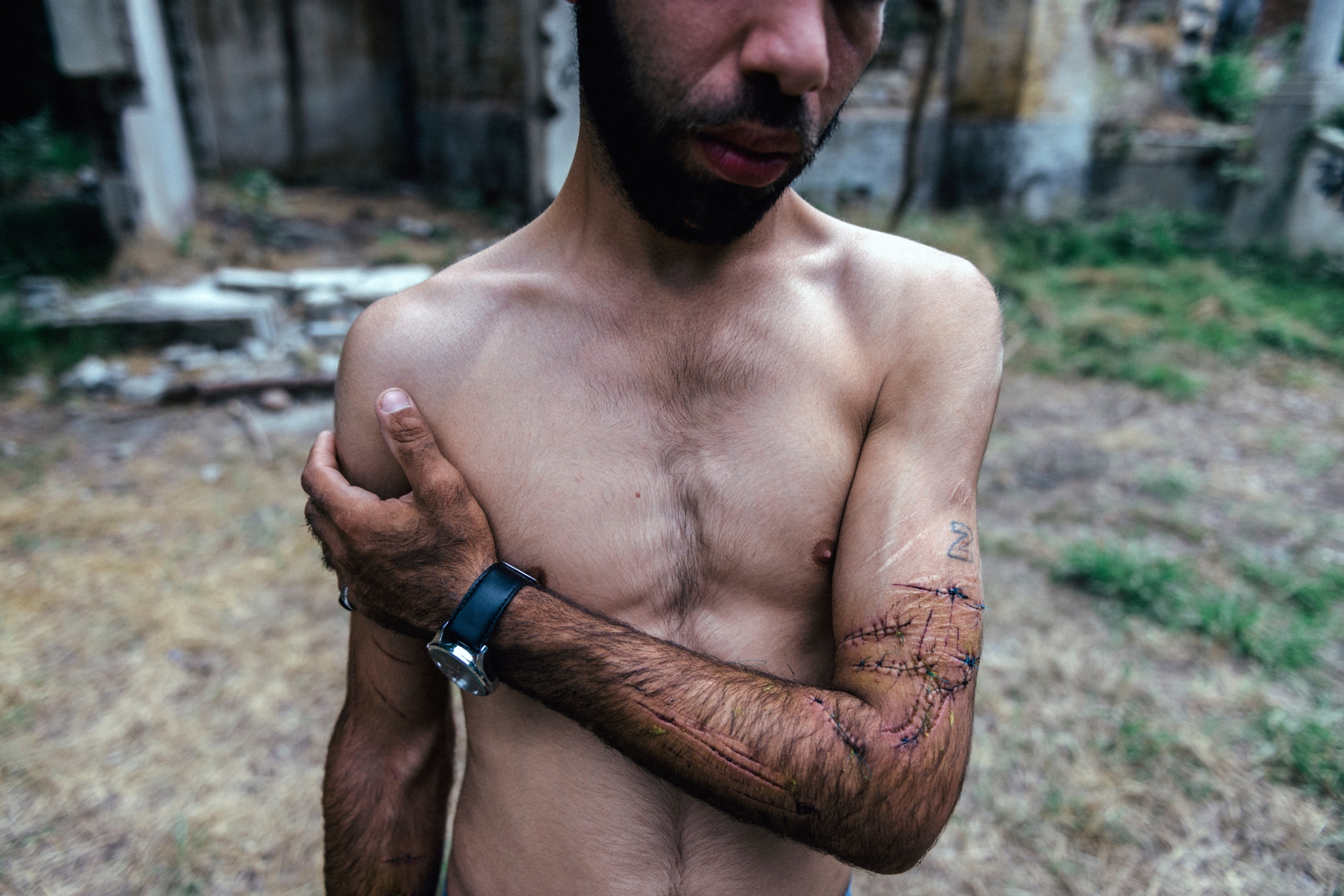 I love parkour so much that scratching on my arm does not matter. If the price of the freedom are these wounds on my hand, I am ready to give my whole hand, but freedom would open to all. Rasht, Iran, Jun 2014.