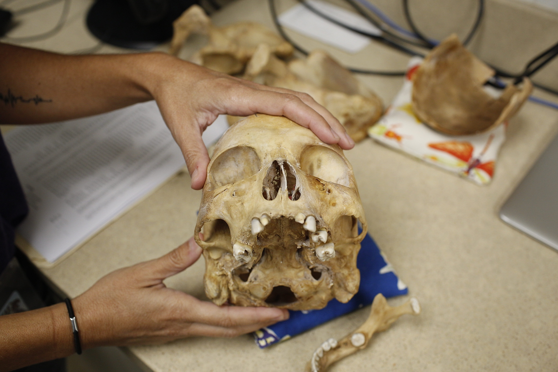 <p>The skull of a male migrant who passed...