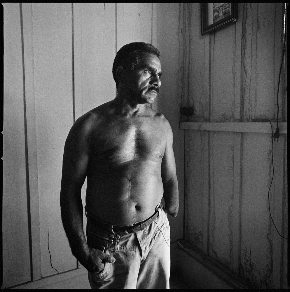 Lauro Santos a Brazilian farmer who lost his arm when he grabbed an army grenade by mistake during the guerilla times in the early 1970s, killing instantly his brother. Here photographed in his home in Sao Joao do Araguaia.  Araguaia region, Para, August 2011.