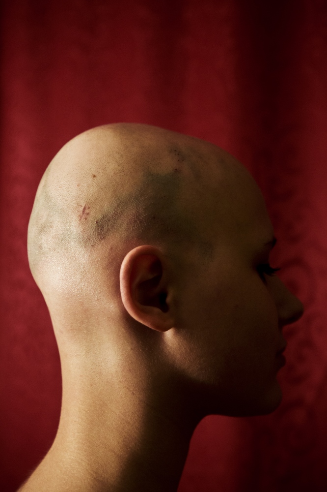 Laura is 17 years old and suffers from Alopecia Areata, a rare disease where the body fights its hair, why she is losing her hair. There is no cure so far for Alopecia and no special trigger of the illness.