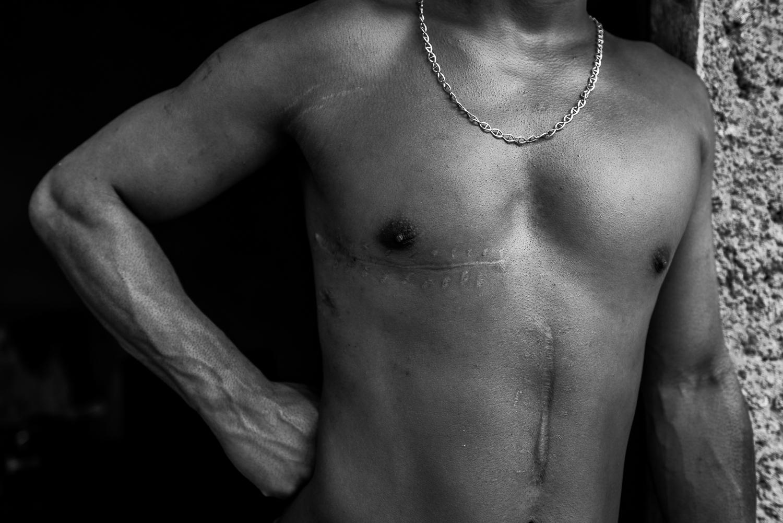 Art and Documentary Photography - Loading Hunger_Crimes_-_Ignacio_Marin-21.jpg
