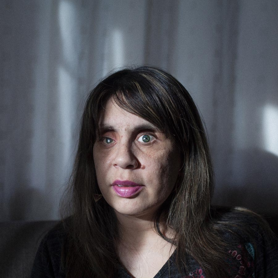 Carola Barría (35) was attacked by her former partner, who in a fit of jealousy took her eyes in the presence of her five-month-old son. She was about to bled to death in the street, but a passer-by found her sheltered in a ditch . Today, Carola has ocular prostheses and has learned to cope with blindness. At the end of 2013 she qualified as a kindergarten teacher and is currently working and caring for her two children. Punta Arenas, Chile October 11, 2016