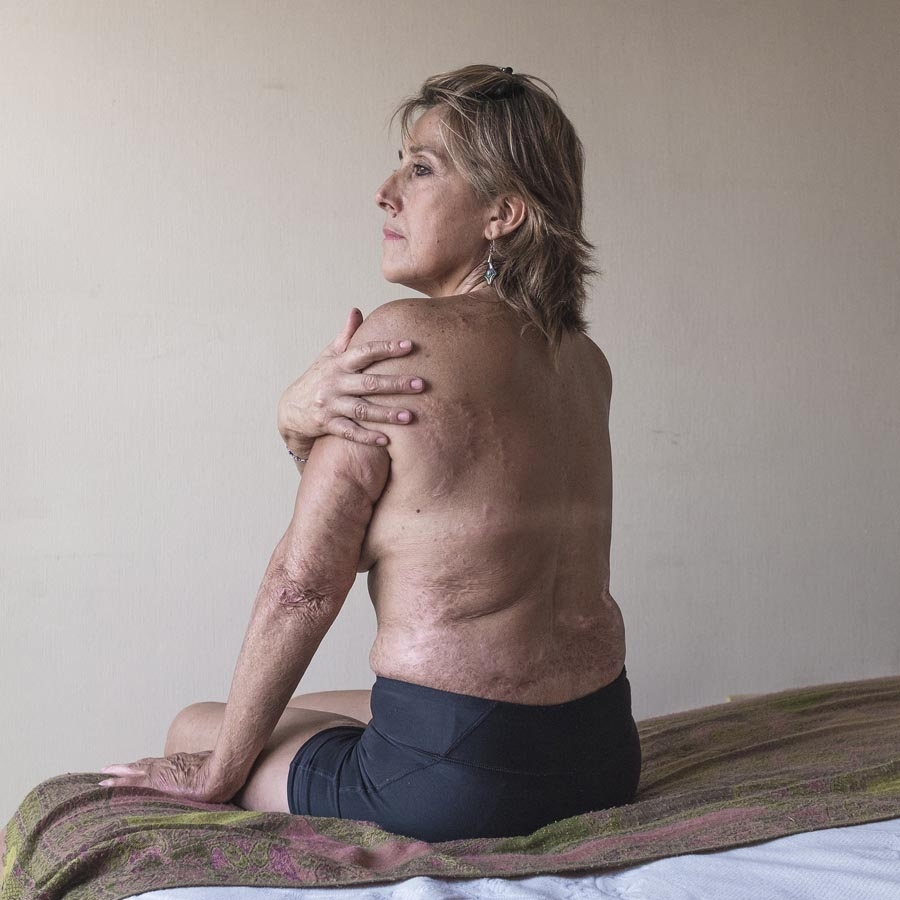 In 2003, Magdalena Zúñiga was burned alive by her partner, who later committed suicide. 60% of his body was left with serious injuries but after several years of therapy he managed to recover and go against all odds. Magdalena decided that no one else would ever have control of her life. She survived and today she declares herself as a happy woman. He currently lives with his children in Santiago, Chile. January 25, 2017