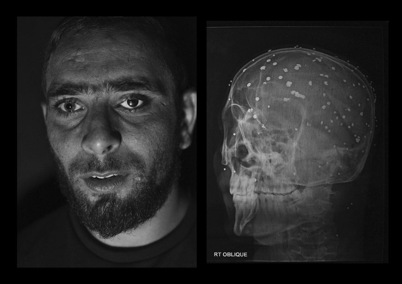 "Danish Rajab Jhat, 24 years old, from Srinagar.  ""It was evening time and the police was chasing the stone thrower in my neighbourhood. I was just sitting on the side of the road and they shot me. I don't remember anything about that moment, i woke up in the hospital. The left eye was entirely damaged so the doctors replace it with an arti cial eyeball"". A shell entered through the left eye and the pellets dispersed all over the the head damaging also the right eye. Danish has still 90 pellets inside hi body and from the right eye he can barely see shadows."