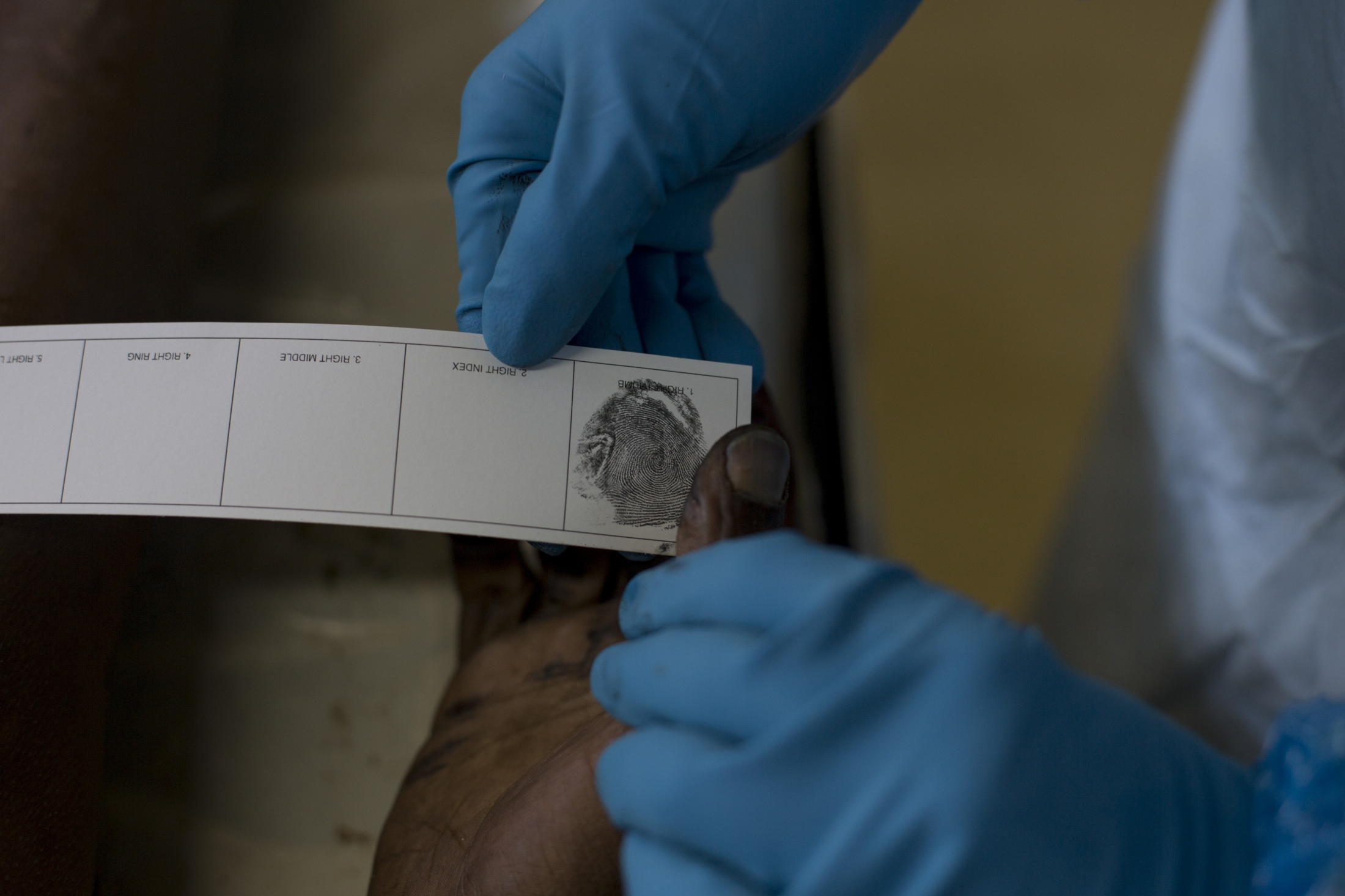 """In this Wednesday, April 18, 2018 photo, a pathologist takes fingerprints of an unidentified male for forensic examination at a mortuary in Johannesburg. The fingerprint are sent to a database of the South Africa police department in order to find a match. If not, the bodies get buried in so called """"pauper graves""""."""