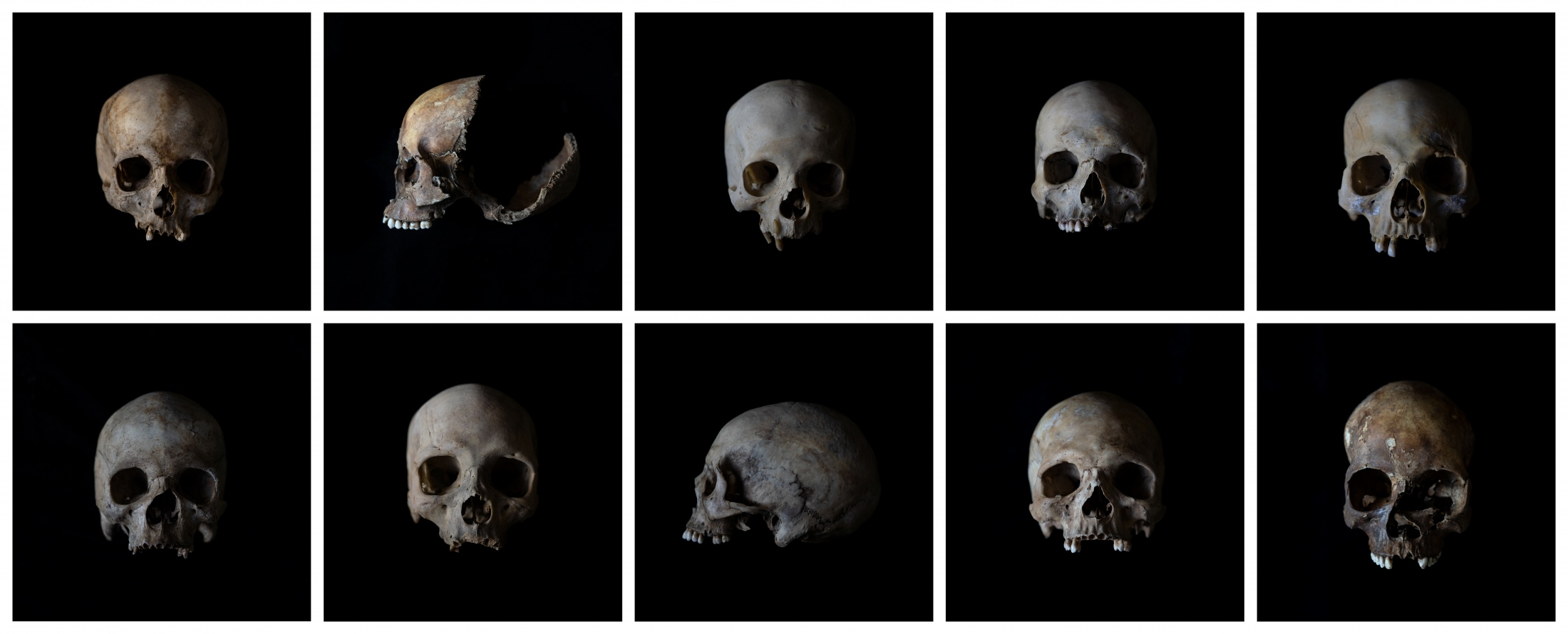 In this Monday Oct. 1, 2018, collection of photographs, the skulls of unidentified people are put on a table at the Johannesburg morgue for identification purposes. Once a demographic profile is estimated it will go to the victim identification center in the South African police department to create a facial reconstruction.