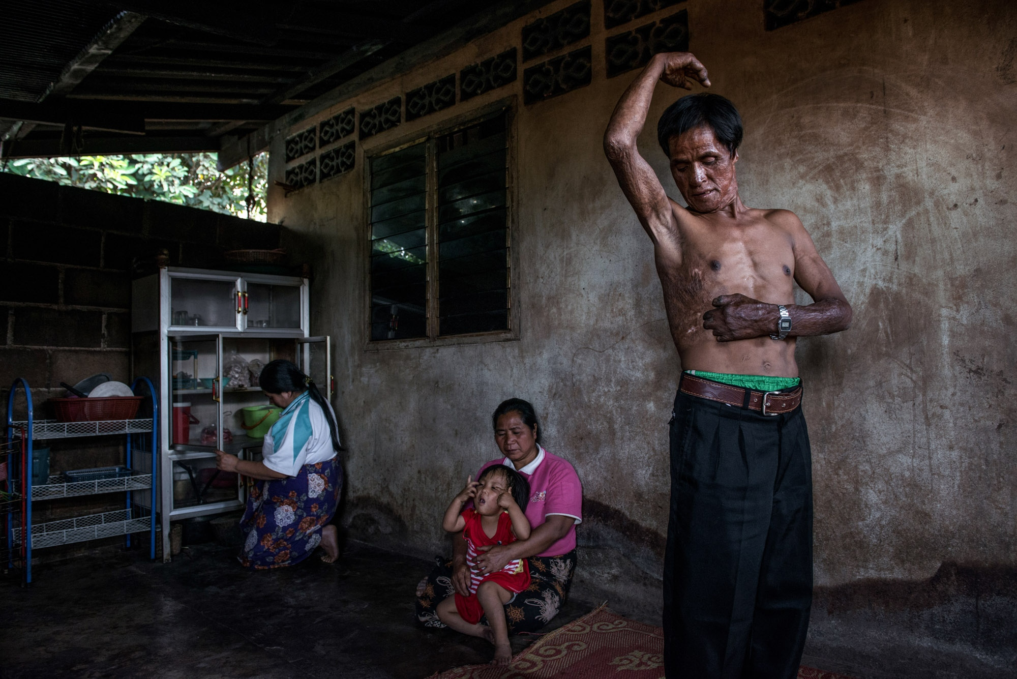 Moshe, a Lahu hill tribe people who once worked as a firefighter. During a fierce firefighting operation, his hands had suffered burns in a dangerous undertaking that left him disabled. After becoming a person with disability, his life has to only cling to the social welfare system.