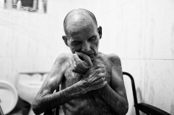 "Reza Reyhani, 57-year-old. As a boy, he was a minesweeper during the war, working to clear mine fields in Iran, a practice that was widely criticized in the West. He is ill and cannot speak or move today because of the chemical effects on his nervous system of his service during the war.  Photo from ""Victims of war"" project"