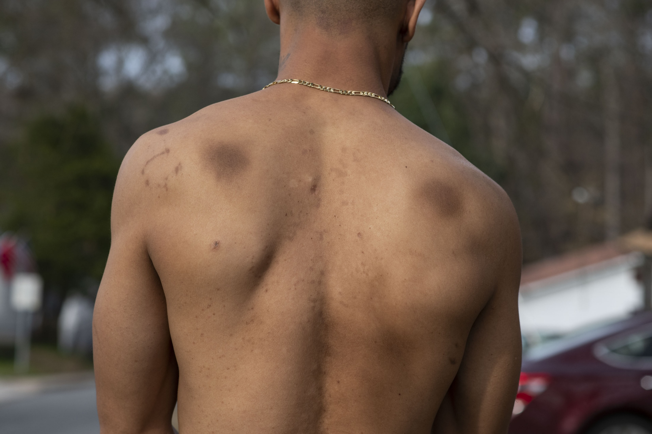 Morrice was shot three times in the back with each bullet lodged in him—one barely missing his heart, the other next to his spine, and the last near his lung. The bruises on his shoulders are from bench-pressing while in prison.