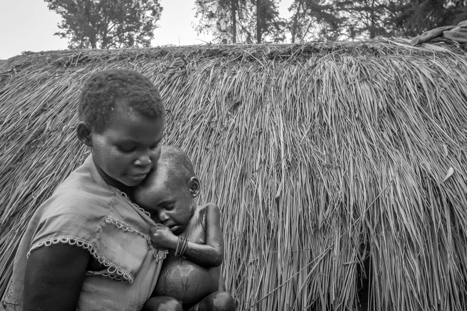 A mother tries to comfort her malnourished child at IDP camp in the village of Gety.