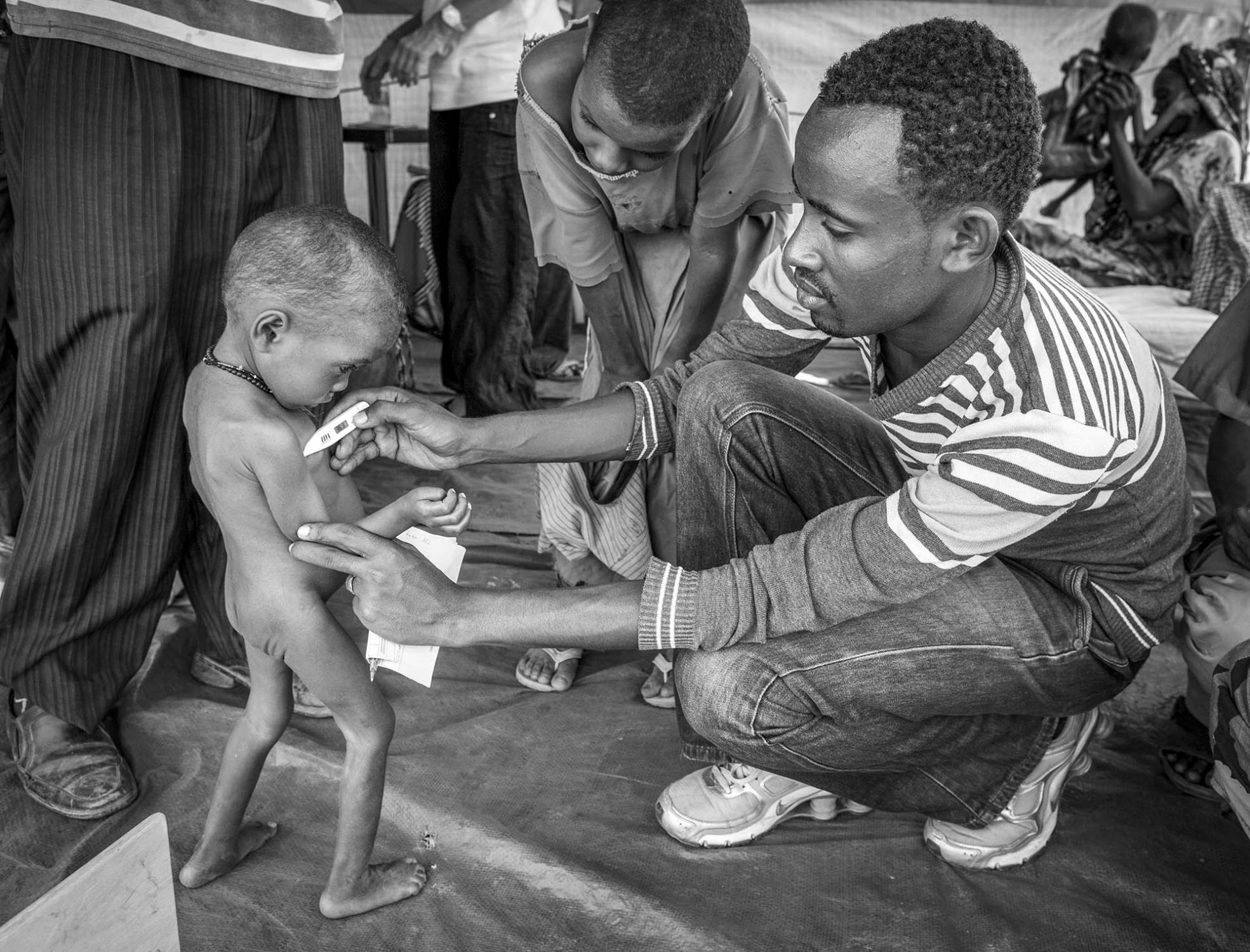 A malnourished Somali boy is being checked upon their arrival at clinic run by MSF (Doctors without Borders) in Malkadida Refugee Camp in southeastern Ethiopia, a few kilometers from Somalia/Ethiopia border, August 12, 2011.