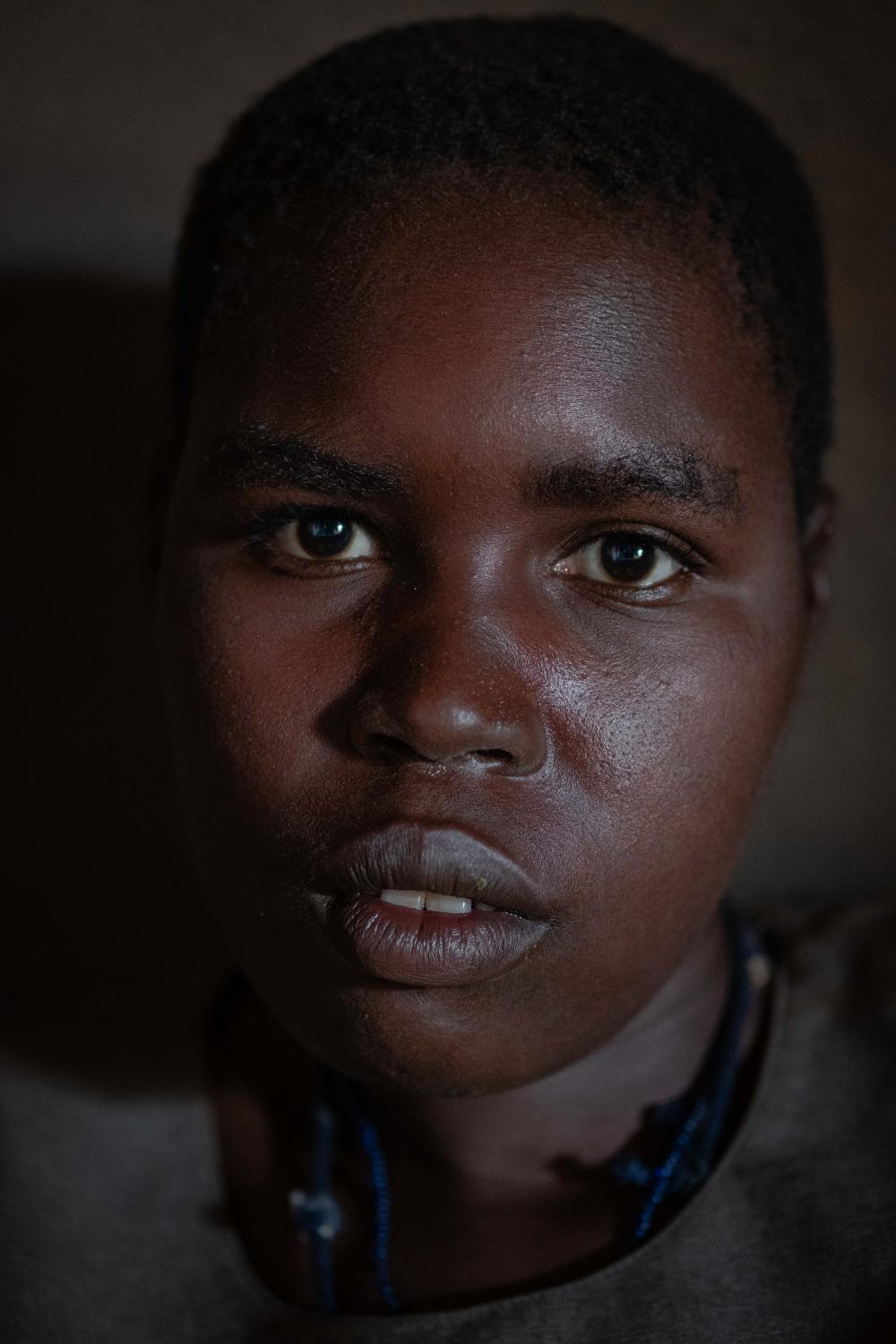Anyeko Vicky, 16, has been suffering the disease for 11 years now. Her situation is very delicate as she gets very violent seizures If she misses a single dose of the anti-convulsants.