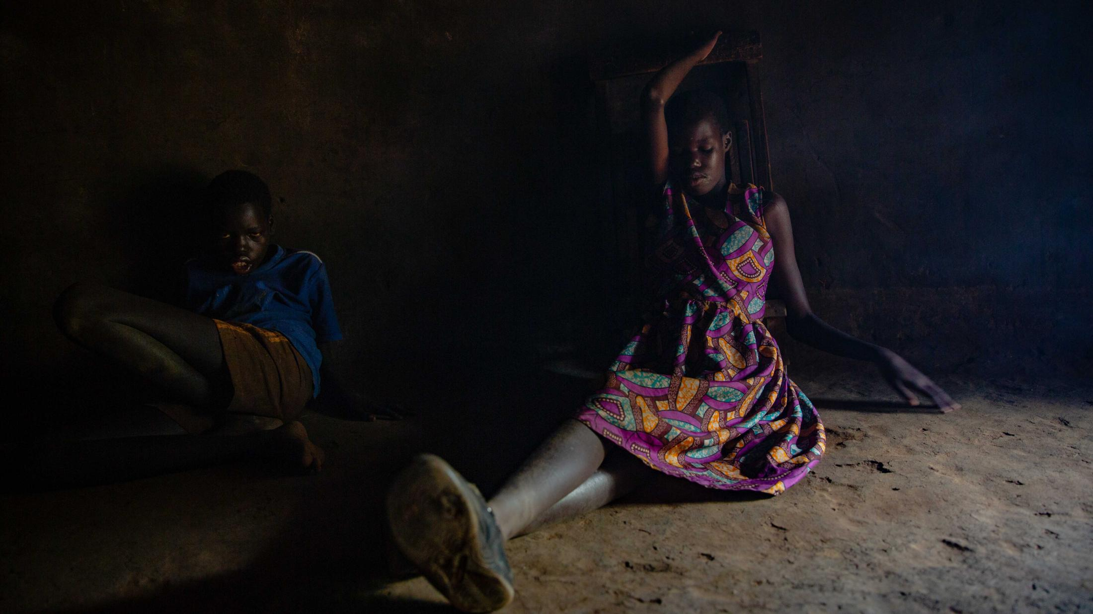 Ochora Walter, 16, and Aciro Grace,18 at home in Omoro District. The disease makes the affected children mostly inactive and they lose their childhood and young adulthood active lives to the disease.