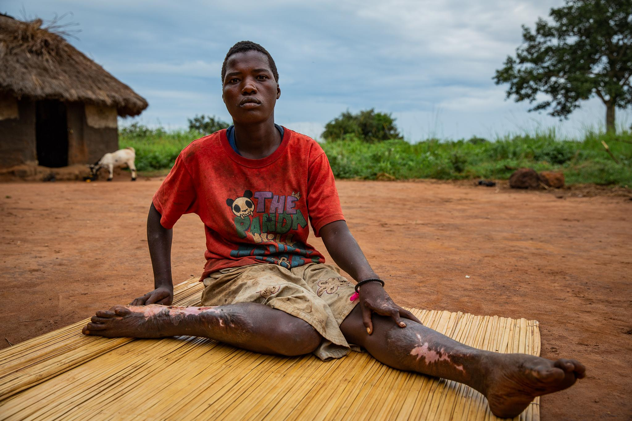 Lakot Milly, 19, was diagnosed with Nodding Syndrome in 2008 in Awere IDP camp. In 2016, she fell in fire while having seizures and she has since been suffering severe wounds.