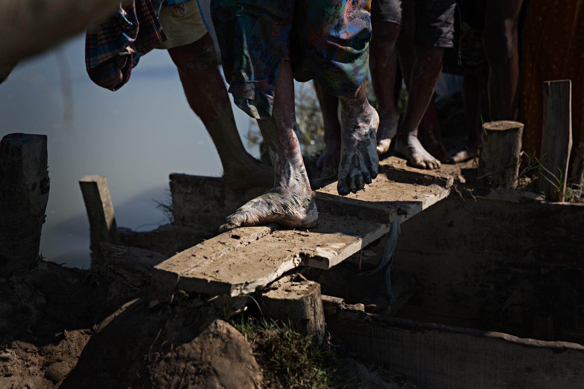 The feet of Rohingya refugees are seen crossing a narrow wooden plank as they make their way along narrow, muddy paths through a rice field after crossing the Naf River from Myanmar into Bangladesh. On this day an estimated 30,000 refugees made the crossing. Due to the narrow passages, going was slow and the temperatures were incredibly hot. Evening saw a monsoon rain come to the field. Many were suffering from exhaustion and malnutrition, while others had gunshot and knife wounds.