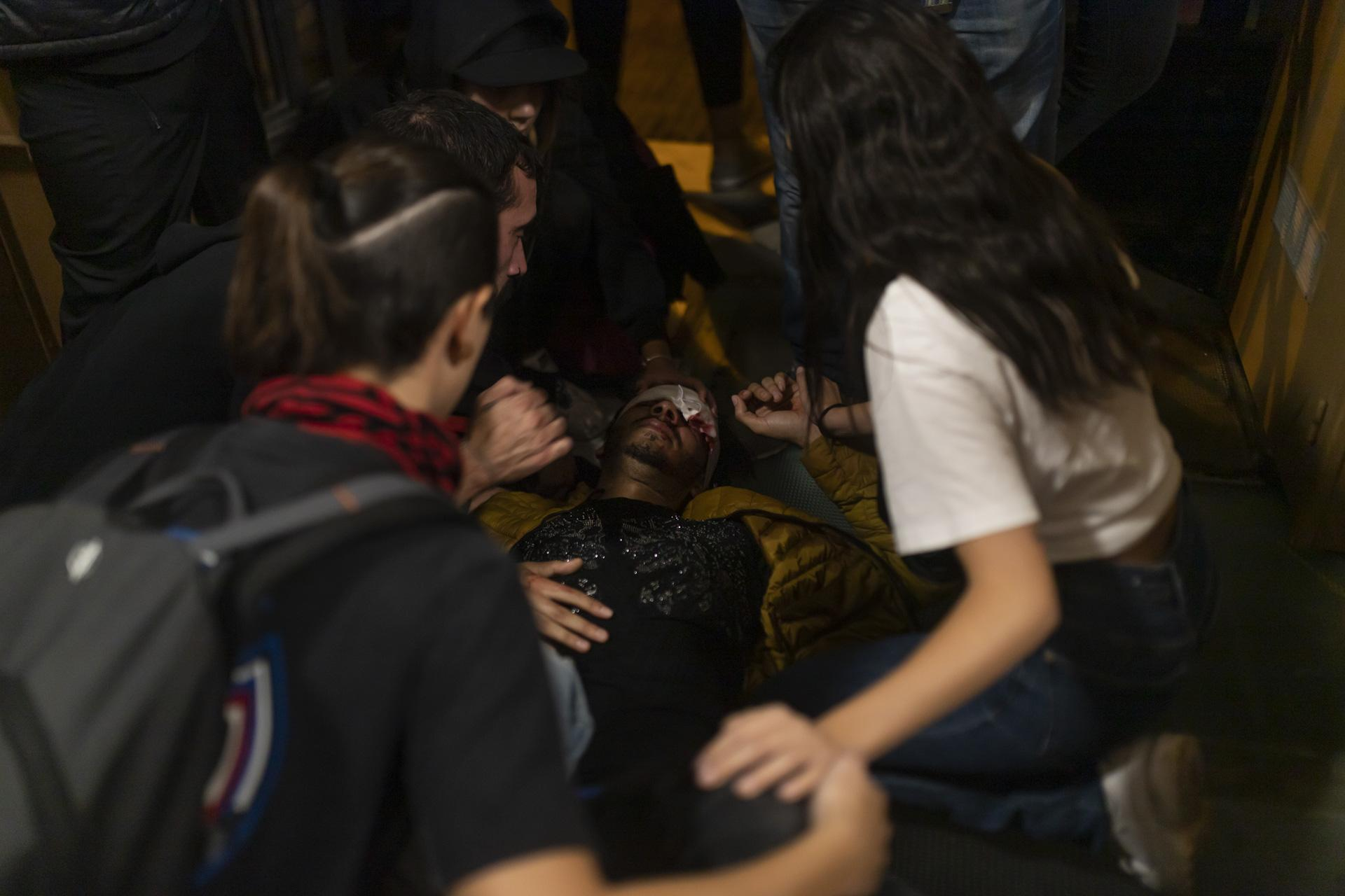 One injured in the demonstrations lost the sight of one eye when the eyeball exploded due to the impact of a rubber bullet. Another lost testicular mass and another three-person lost the vision of one eye during the protests. October 2019, Barcelona, Spain.