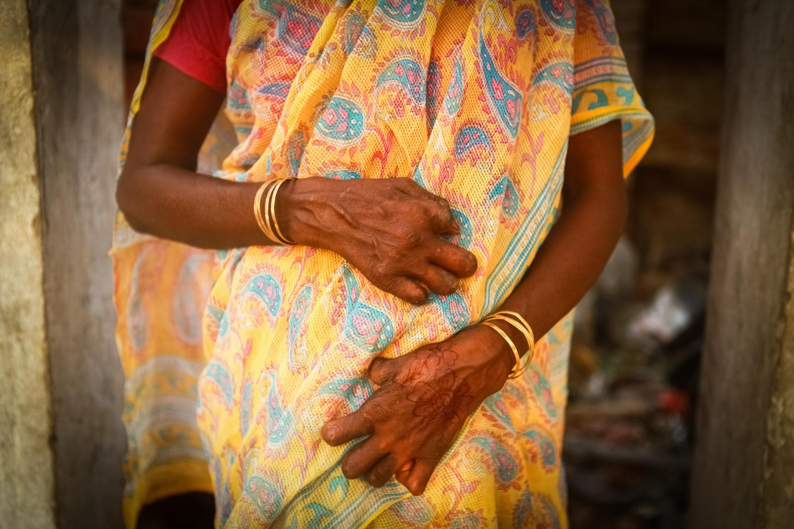 Photography image - Loading 01_Manjo_Devi_s_hands_that_are_severely_deformed_by_leprosy_disease_Sankat_Mochan_Varanasi__India_2012_The_Spirit_Bloweth_Leprosy_Project.jpg