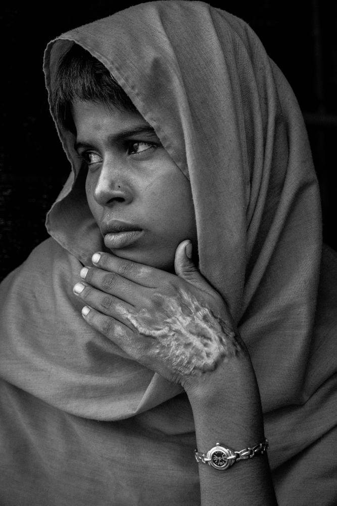 Shafique Begum, 15, from Tula Toli village in Maungdaw Township, Rakhine state of Myanmar. The Myanmar military killed a total of 21 members of her family. Her parents, 5 sisters, and four brothers were all killed. Along with her immediate family, her sister in law and her children and parents were murdered as well. She suffered severe burns after her home was set a blaze by the Myanmar military and is the sole survivor of her family. She lives in Balukhali refugee camp with a woman from her village who agreed to take her in.