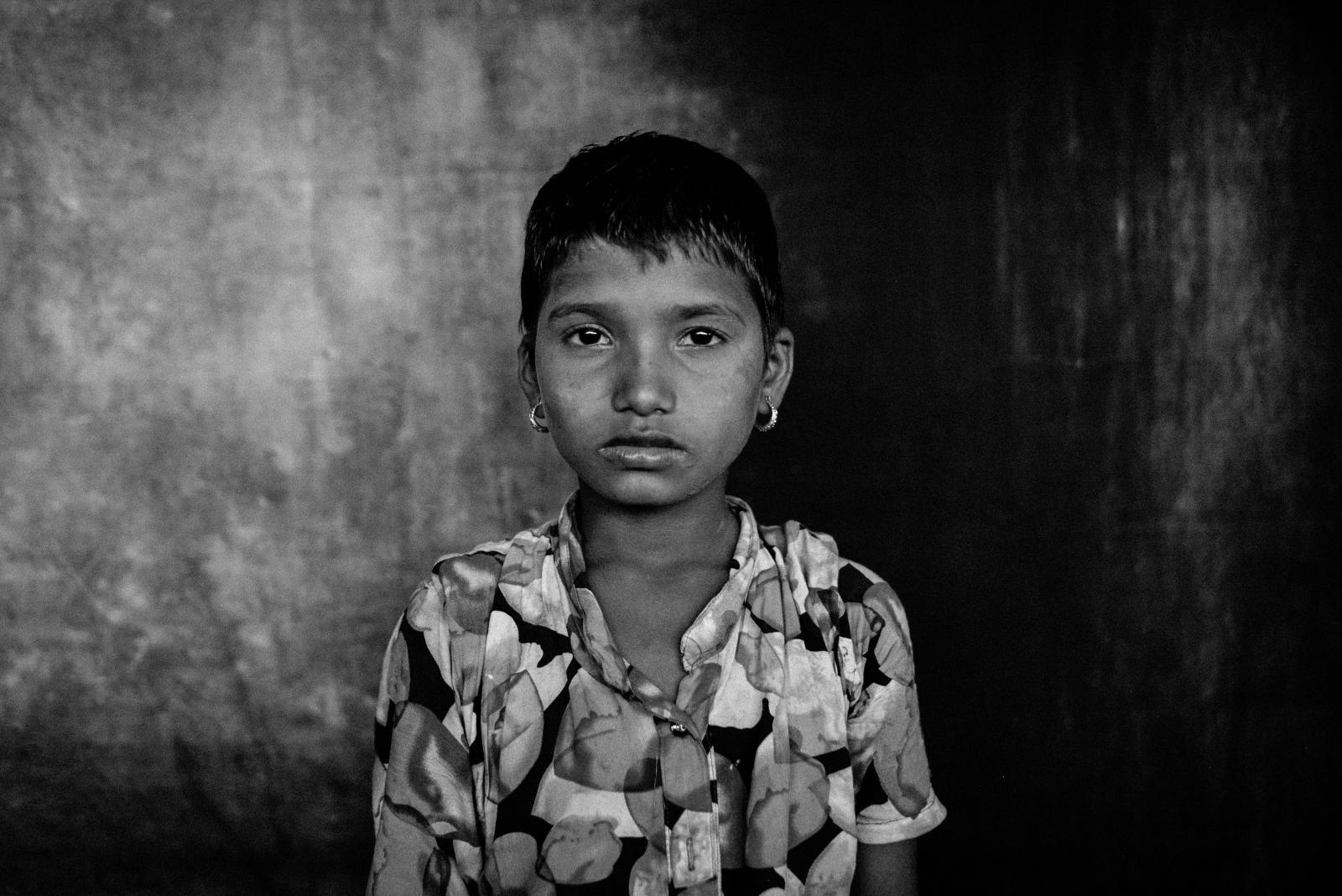 Nur Kalima, 10, from Tula Toli village.  Her mother was mother was one of the many victims of sexual violence by the Myanmar military and her father was shot and killed.  Nur was beaten with a stick by a soldier till she went unconscious and thinks she was sliced with a knife.  After she awoke, there was a large gash on the top of her head.