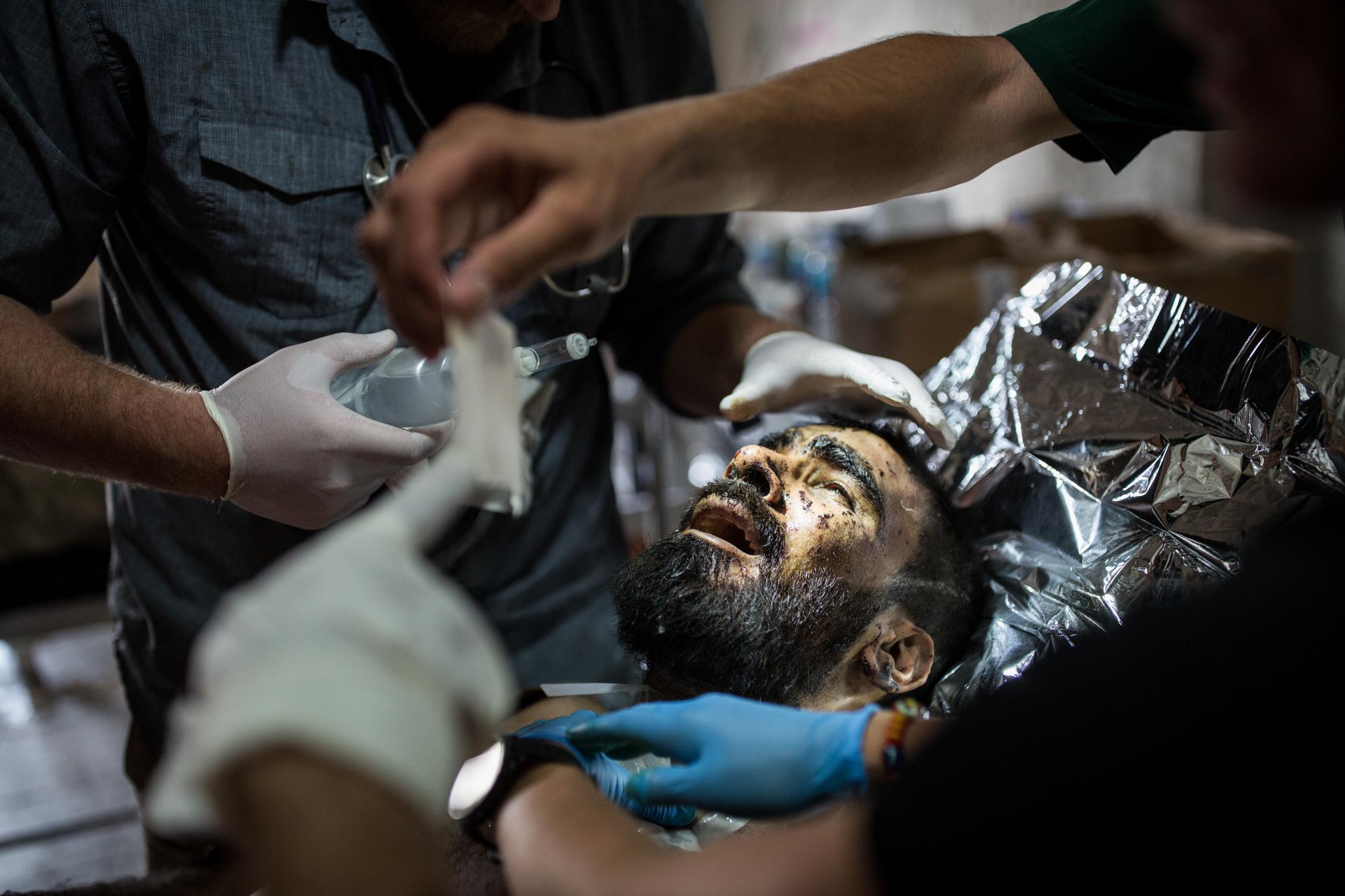 Le 2 juillet 2017, point médic de l'armée irakienne, un homme blessé par des éclats au visage est pris en charge par des medics volontaires américains.