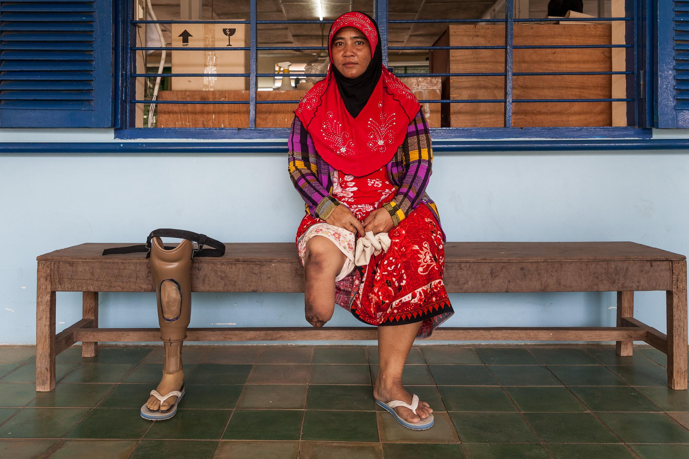 KAMPONG CHAM, CAMBODIA - JANUARY 17: A woman poses with her prosthetic in the Handicap International Rehabilitation center on January 17, 2014 in Kampong Cham, Cambodia. Cambodia is one of the most heavily mined countries in the world; some estimate that there are as many as ten million mines in a country of 14.5 million people. Handicap International has been working in Cambodia for almost 30 years, supporting people with disabilities and victims of chronic diseases. The organization gives priority to these people, working on injuries prevention. Prosthetic and rehabilitation are part of the main focus actions, which they have been doing in their physiotherapy center in Kampong Cham since 2002. The number of beneficiaries has increased enormously since then, accompanied by a rise in orthotic and prosthetic production. Photo: © Omar Havana / Getty Images