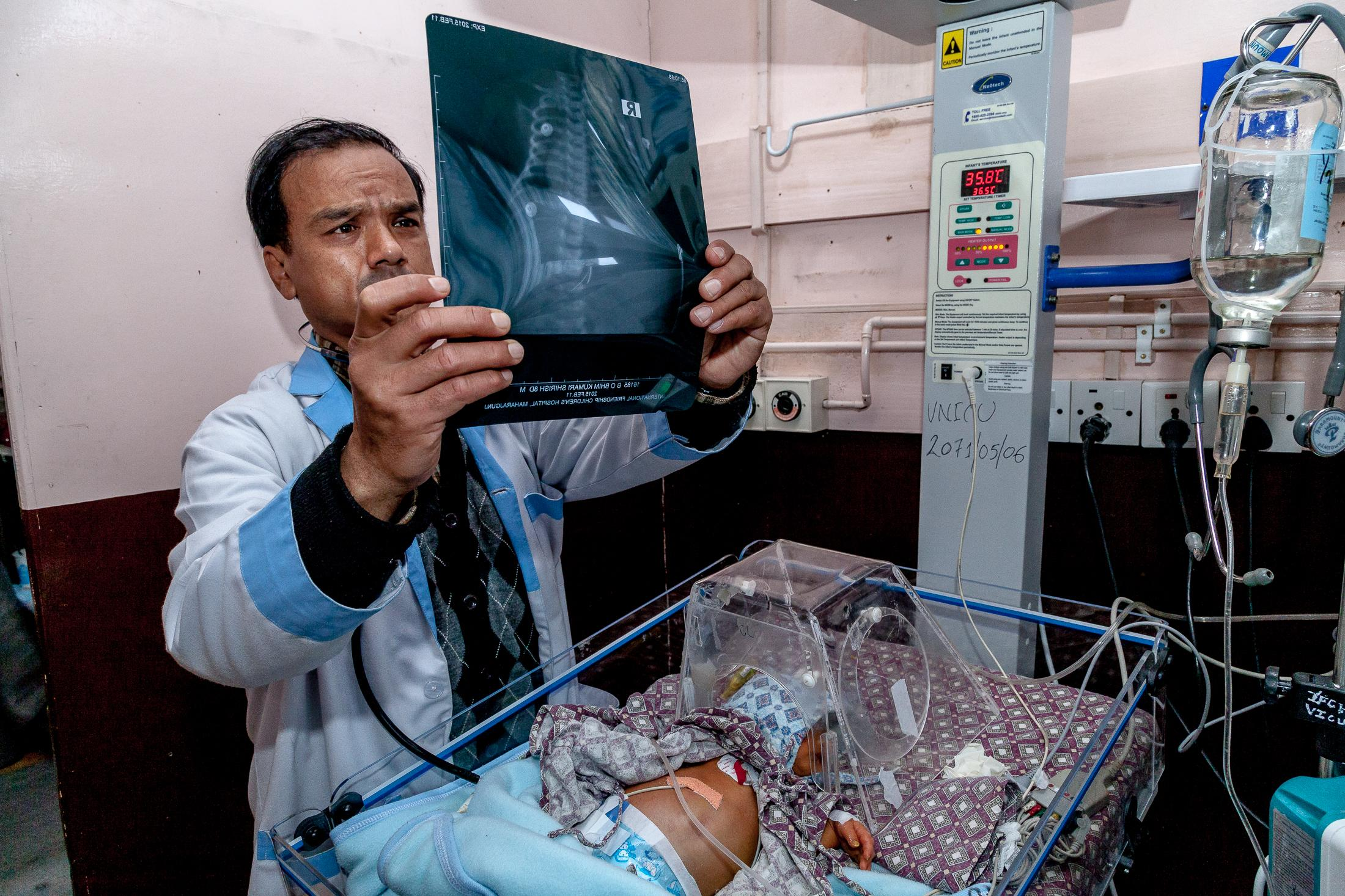 KATHMANDU, NEPAL - FEBRUARY 12, 2015: Dr. Samundra Bajimaya checks the x-ray of a 10-days-old boy suffering from rapid breathing and a neonatal thrombocytopenia - platelet count of less than 150 x 109/l.- at the ICU of the International Friendship Children's Hospital on February 12, 2015 in Kathmandu, Nepal. Mechanical ventilators, which are not available in all hospitals around Nepal, are used to provide breathing support for premature or sick babies. From 1996 to 2006, Nepal reduced by close to 50% its maternal mortality rate, going from 539 deaths in 100,000 to 281, making Nepal a success story. However, each year, 57,000 under-five children still lose their lives, with 54% of those cases occurring within the first month after birth. In 2013, only 50% of births were attended by skilled birth attendants. Several issues remain to be addressed with regards to maternal and newborn health, including tackling inequalities, improving access to care in remote areas, improving quality of care, increasing the use of family planning methods, and reducing malnutrition. Photo: © Omar Havana for UNICEF