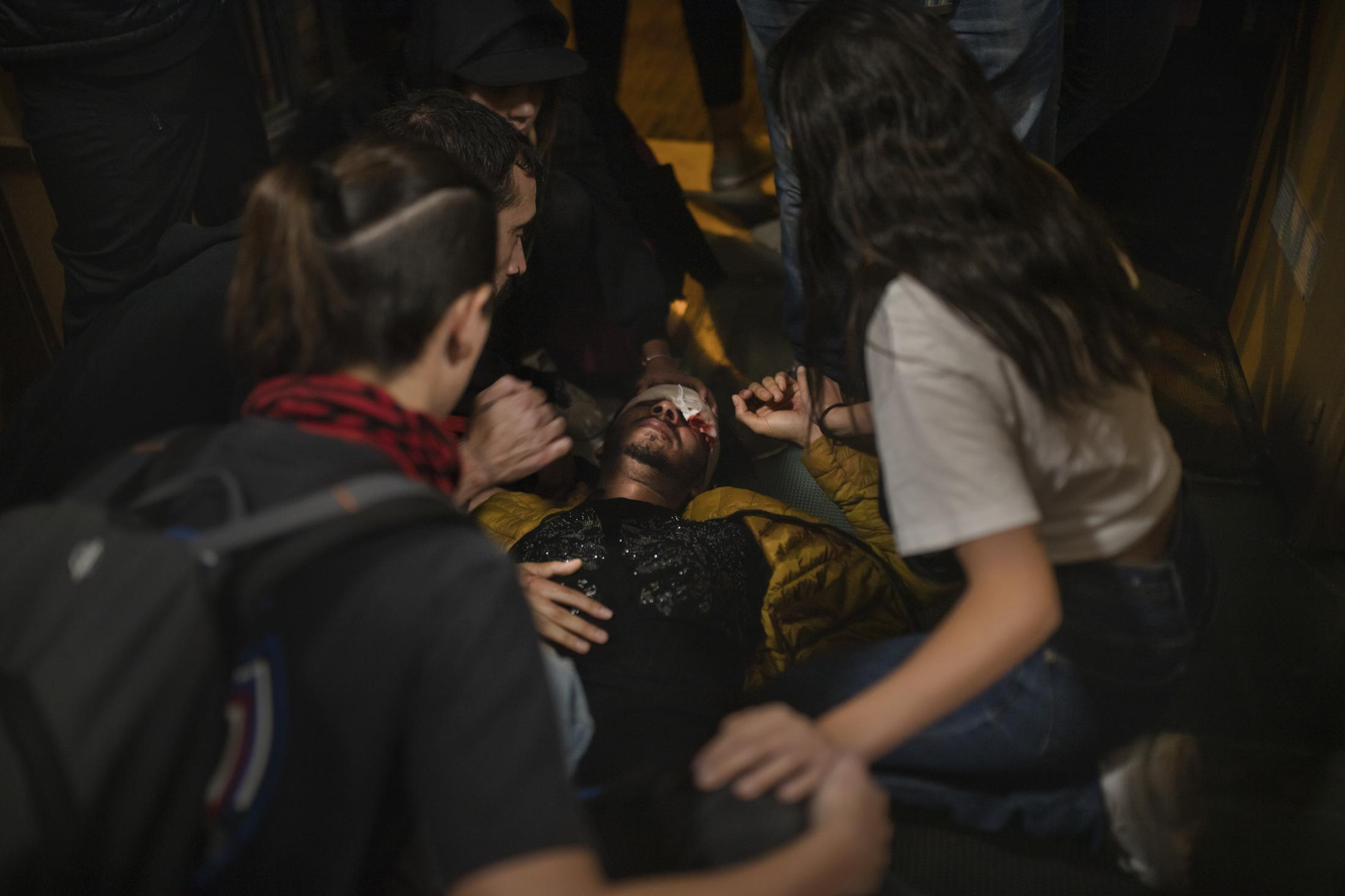 """October 18, 2019. Barcelona, Spain. A man is on the floor after being injured by the police. During protests in Catalonia, four people lost an eye, another lost testicular mass. Rights group Amnesty International called on """"all authorities"""" to refrain from contributing to the escalation of tensions in the streets and to respond """"proportionally"""" to outbreaks of violence. In 2014 a ban on the use of rubber bullets as an anti-riot weapon was imposed on the Catalan police force following a high profile campaign led by victims who had lost vision. Then Mossos de Esquadra only used """"foam"""" bullet to control the altercations recorded in the Catalan streets, while for National police and Guardia Civile It was still possible to use rubber bullets because of """"a scale of order"""" and the rules that allow using this riot gear """"are above"""" what is established in the Catalan law."""