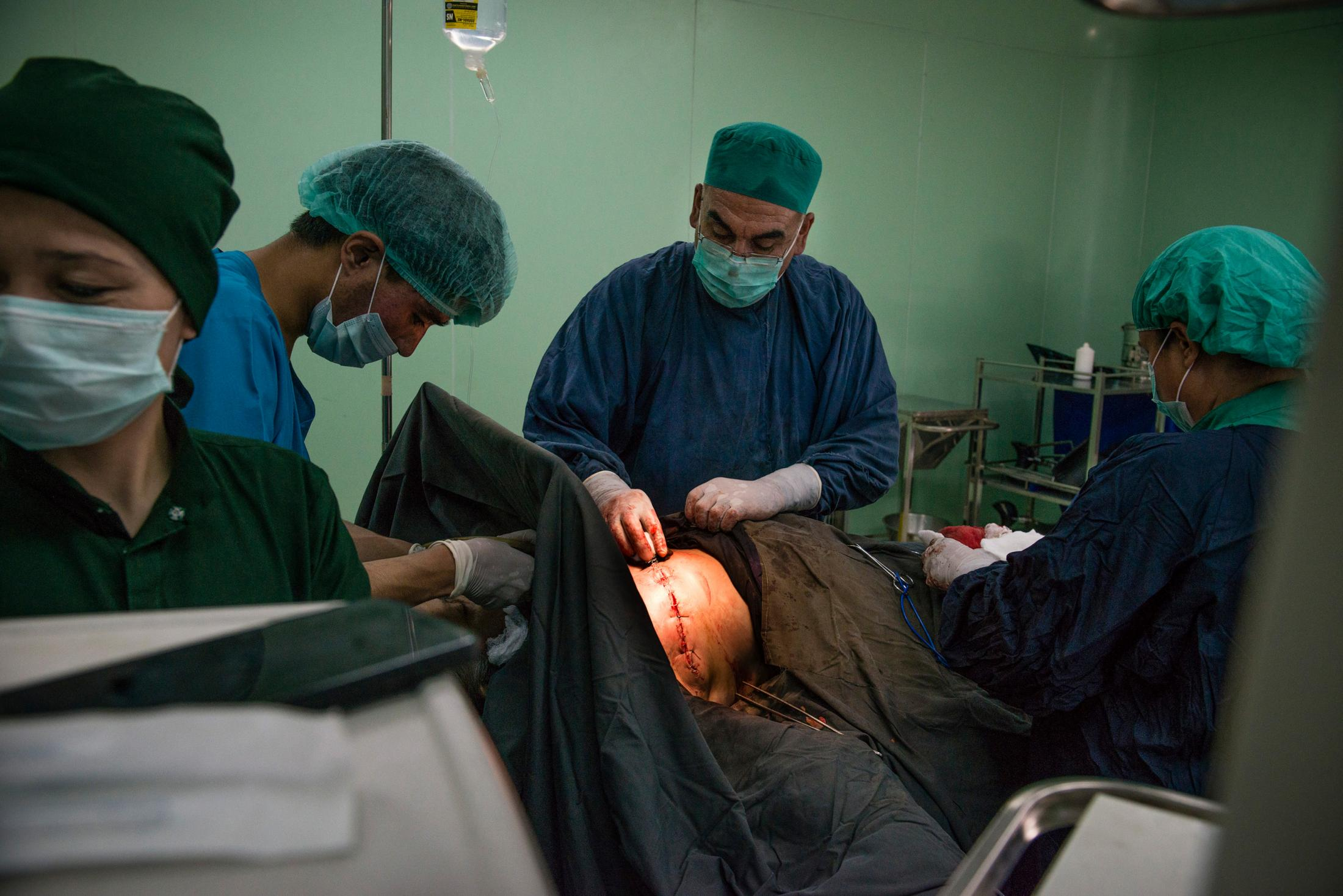 KABUL, AFGHANISTAN | 2017-07-12: Dr Hazeen and Dr Nafissa put on stitches after performing a mastectomy on a breast cancer patient, 72-year-old Shafiqa, inside Jumhuriat Hospital. The operation alone cost 10,000 afs (about $165) which is very costly for average Afghans. Her son got into an argument with one of the doctors and said she is too old and doesn't worth 10,000 afs before walking out of the waiting room.