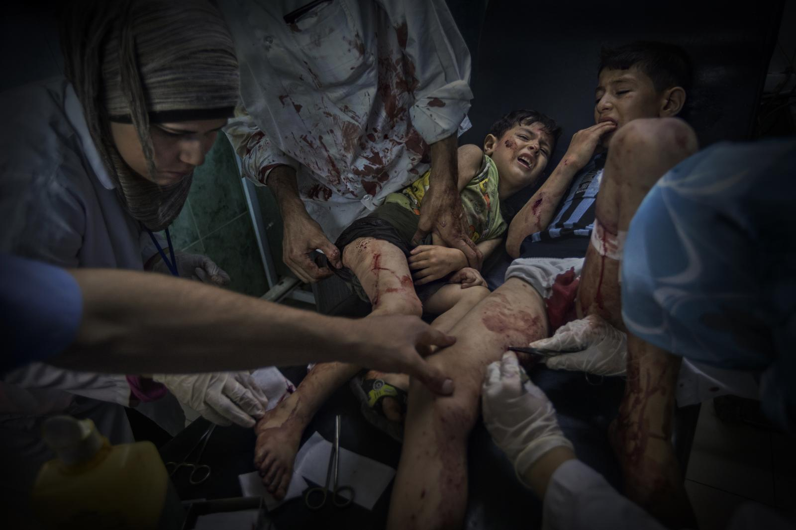 The army of Bashar al-Assad bombarded several houses and bakeries, where people had been standing in line since dawn to buy bread. As a result, 50 people died and 197 were injured, most of them children. Two brothers are treated for machine-gun wounds at Dar al-Shifa Hospital, between Al-Shaar and Taril Al-Bab (Syria).