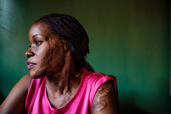 Uganda's acid attack survivors live on