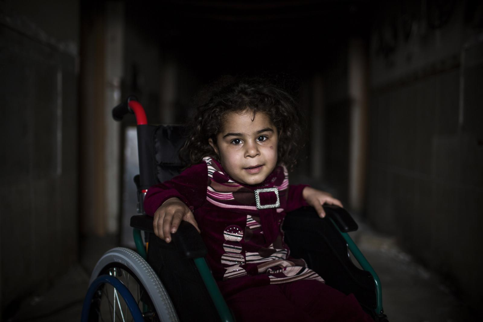 Five-year-old Faten receives care at MSF's Post-Op Hospital south of Mosul, Iraq. She was injured while playing in a garden when a mortar bomb fell nearby and exploded. Hamdaniya, Iraq 2017. Diego Ibarra Sánchez for MSF