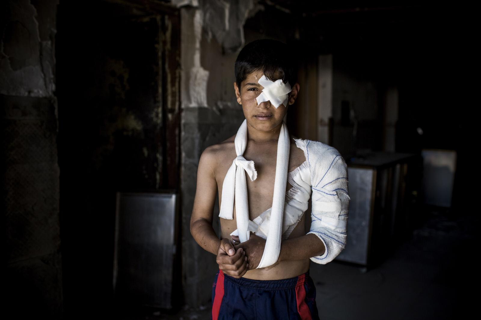 Portrait of Abdul Rahman, an Iraqi 11 year old, He was injured when he was on his way to a food distribution by an explosive charge. His family is still in Mosul. Hamdaniya, Iraq 2017. Diego Ibarra Sánchez for MSF