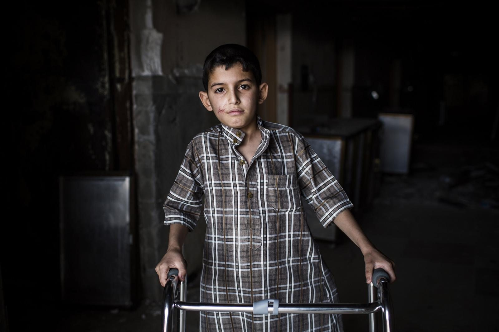 A Portrait of Mohamed Faris, an Iraqi 11 year old. He is from West Mosul. A mortar exploded in front of his house. His sister died and his father got injured. Post-op hospital in Hamdaniya, Iraq 2017. Diego Ibarra Sánchez for MSF