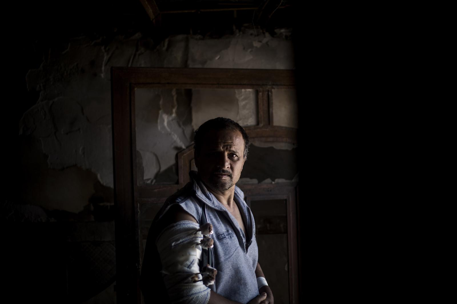 Portrait of Shamed Ashim, 51 years old. He is from West Mosul. He was injured on March 7th by a helicopter fire. Hamdaniya, Iraq 2017. Diego Ibarra Sánchez for MSF