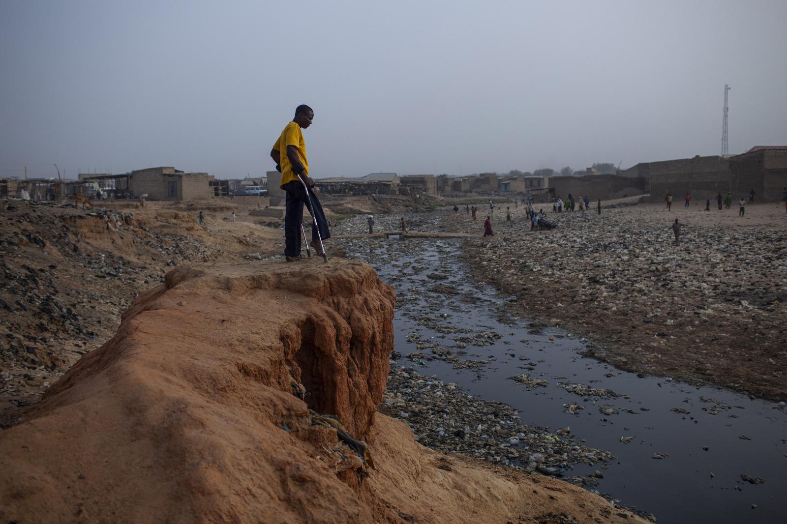 A polio survivor. Polio is no longer endemic in Nigeria. Kano, Nigeria 2014. Diego Ibarra Sánchez