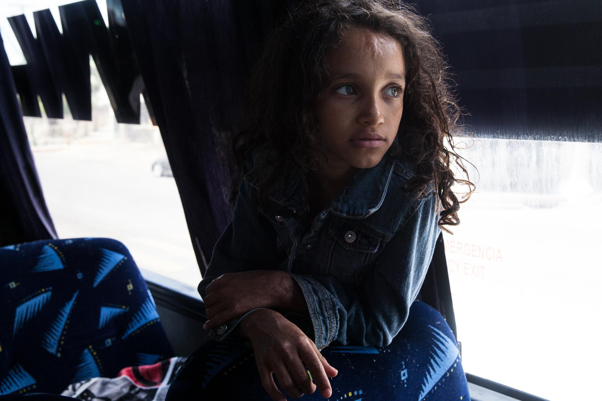 A young girl with burn marks from Central America watches television while people board a bus that is headed to Tijuana, MX on April 24, 2018. The bus stopped in Mexicali, MX, for about two hours while volunteers fed them, medical professionals were available, people were able to charge phones and relax in a big room.