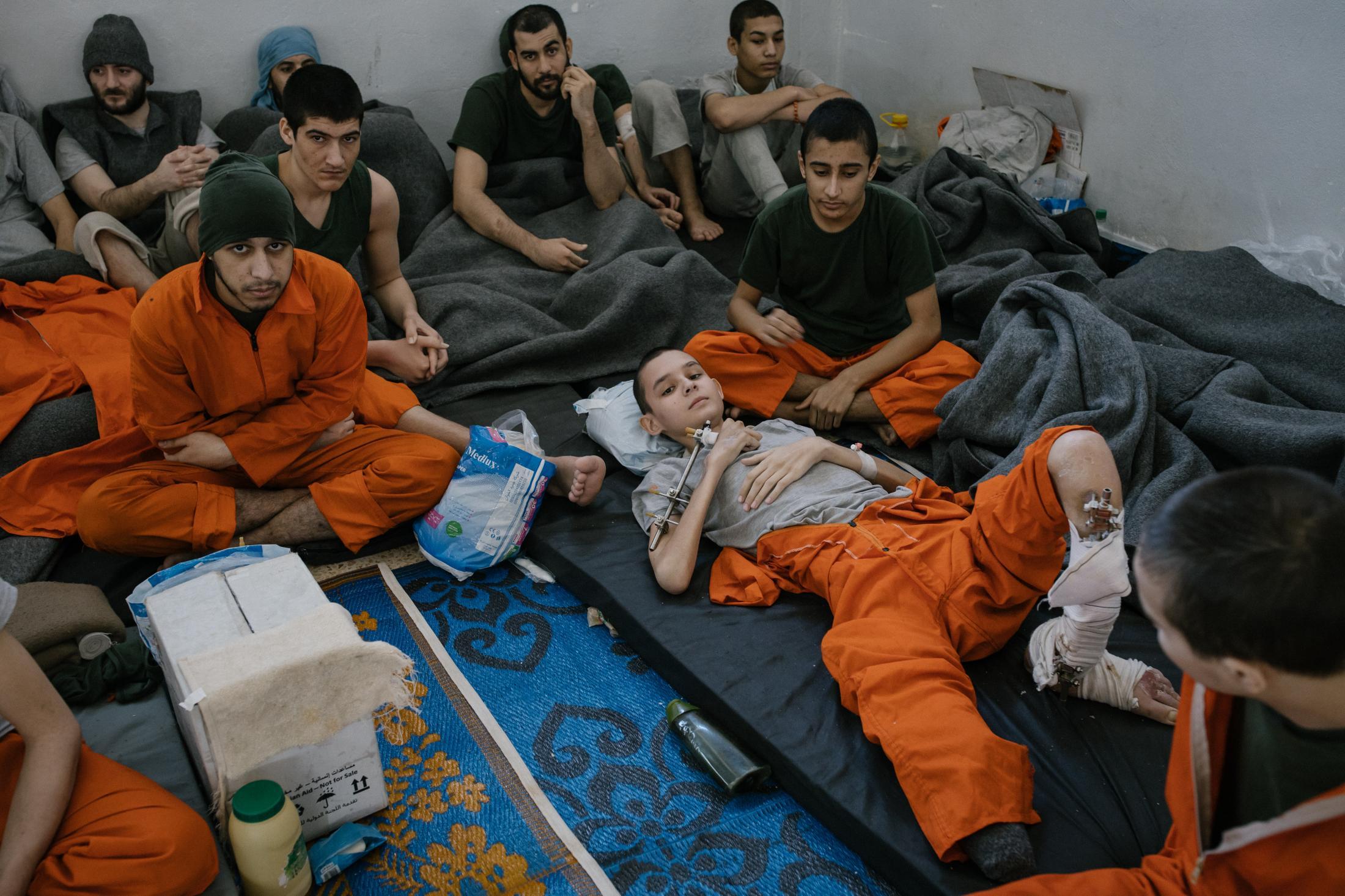 Le 30 octobre 2019, Hassake, nord est syrien. Envion 5000 prisonniers supposés membres de l'Etat islamique vivent dans cette université transformée en prison. Entre 100 et 200 détenus dans chaque salle de classe. La prison est ouverte depuis 4mois au moment de cette photo. Elle est surpeuplée. Les prisonniers sont considérés comme les plus radicaux et vivent dans des conditions difficiles. Cette pièce servait sans doute de grand réfectoire. elle se situe au rez de chaussé, et accueille tous les malades et mourrants. Cet enfant a de multiples blessures, il a été amputé et l'autre jambe est infecté. Il est d'origine étrangère.