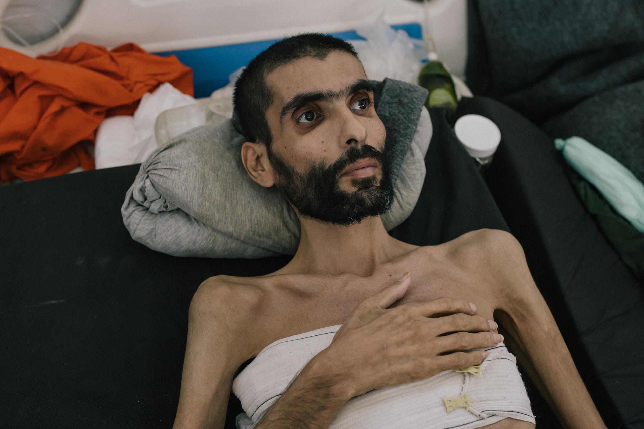 Le 30 octobre 2019, Hassake, nord est syrien. Envion 5000 prisonniers supposés membres de l'Etat islamique vivent dans cette université transformée en prison. Entre 100 et 200 détenus dans chaque salle de classe. La prison est ouverte depuis 4mois au moment de cette photo. Elle est surpeuplée. Les prisonniers sont considérés comme les plus radicaux et vivent dans des conditions difficiles. Cette pièce servait sans doute de grand réfectoire. elle se situe au rez d chaussé, et accueille tous les malades et mourrants. Les plus chanceux ont un lit, comme cet homme qui souffre de malnutrition et probablement de maladie.