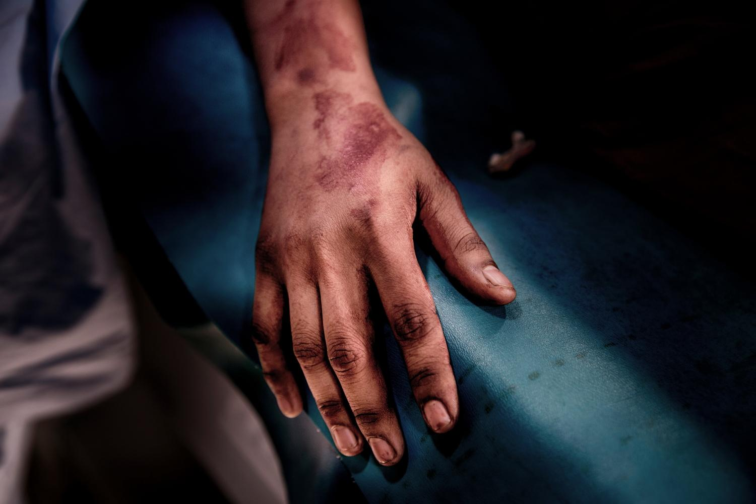 Hands of Bobita in an emergency room at Tongi industrial zone. Female textile workers routinely face gender-based violence and exploitation. Bobita did not call to her parents. She does not want their villagers speak ill about her profession. She says, 'If they know what happened to me, they will lose their mind. I do not want to go back and depend on my old father.' Tongi, Bangladesh