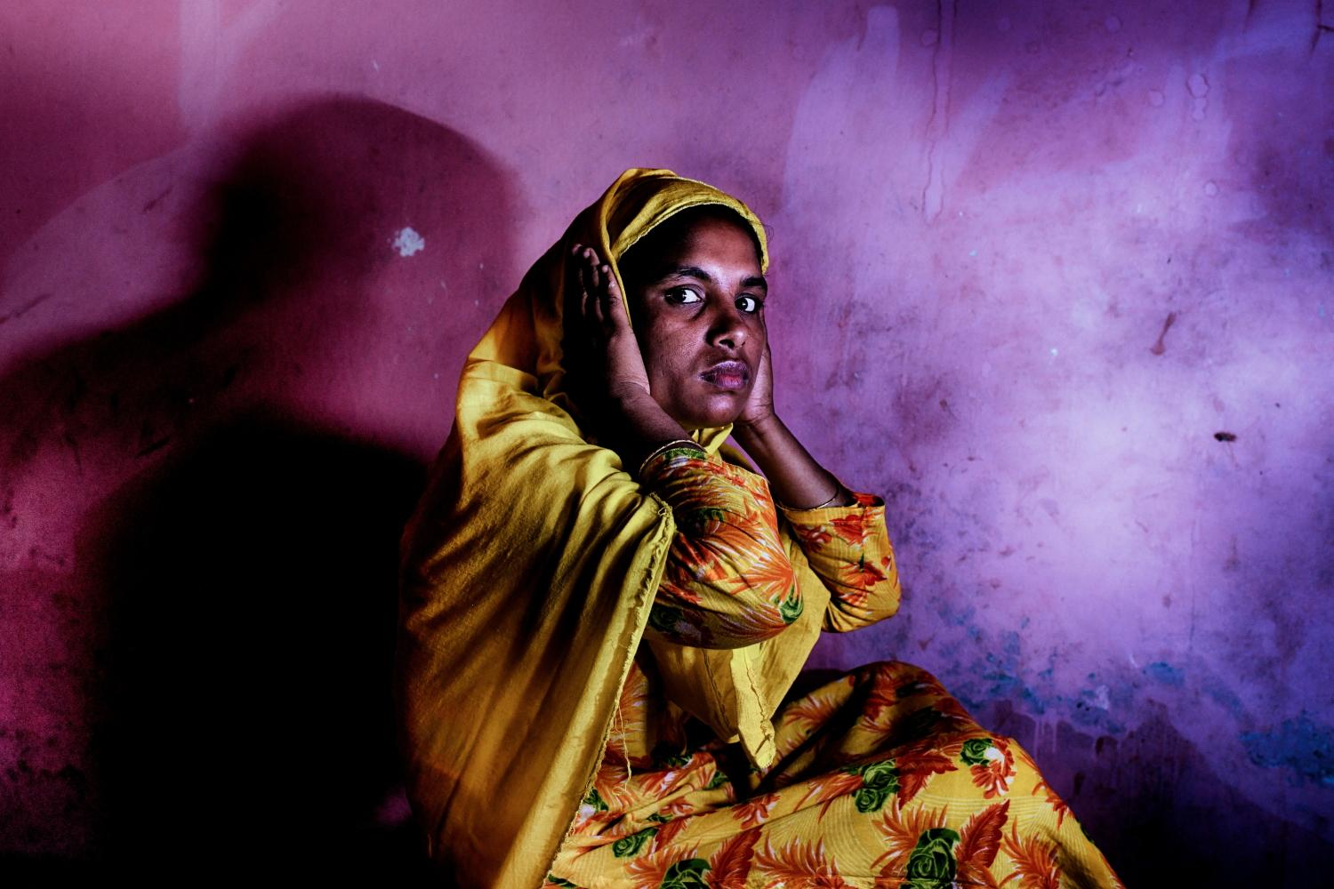 Textile worker Razia Begum (30) was beaten by her husband when she refused to give last saving 100 taka (1 USD) to her textile worker husband. In pain, with scars Razia is unable to seek help and having hearing problems now. Due to Covid19 lock down she can not go to any hospital for treatment. Tongi, Bangladesh