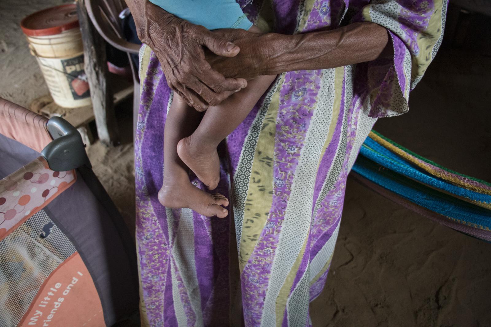 Elvira María, carga en brazos a su nieto Josué de un año, en su casa en el sector Caracolito I en la Alta Guajira, el 3 de agosto de 2016. Los wayuú, etnia de la guajira venezolana, se han visto afectados por la profunda crisis que atraviesa Venezuela, confirmándose la muerte por desnutrición de dos niños hermanos.