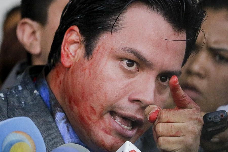 Carlos Paparoni, diputado a la Asamblea Nacional venezolana, declara sobre las agresiones que sufrió al intentar salir del Palacio Legislativo. Caracas, Venezuela. 03/03/2016.