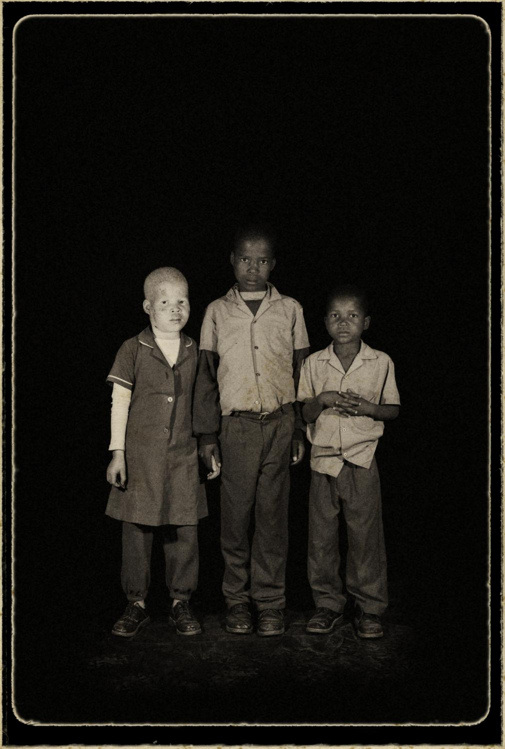 Hosea, Swaziland. ¨Orphans¨ Portrait of orphaned Lwanaile 12 years old, with her sister nonzobeko, 10 years old (albino), and Baneze, 8 years old, they live with their mother, their father already died. The HIV/AIDS pandemic has affected almost every family in the Kingdom of Swaziland. The Country has the highest percentage of HIV-positive people in the world, with nearly 36% of those between the ages of 15 and 49 living with HIV. Of extreme concern is the issue of orphans in a Country of just more than one million people an estimated 220,000 people are living with HIV. More than 70,000 children have been orphaned by AIDS. According to UNADIS, the number of orphans will continue to grow at an alarming rate with a projection of 120,000 orphans in the Country by 2010. (UNAIDS: 2006 Report on the global AIDS epidemic).