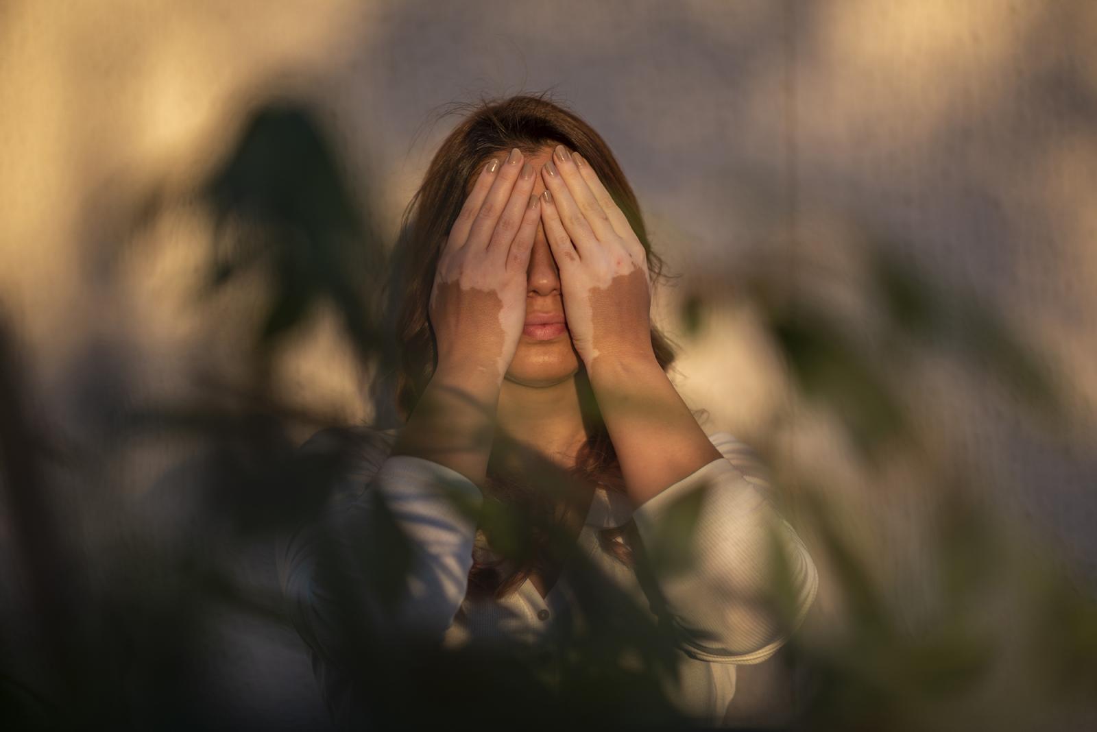Photography image - Loading 1_Vitiligo_Project_UAE.jpg