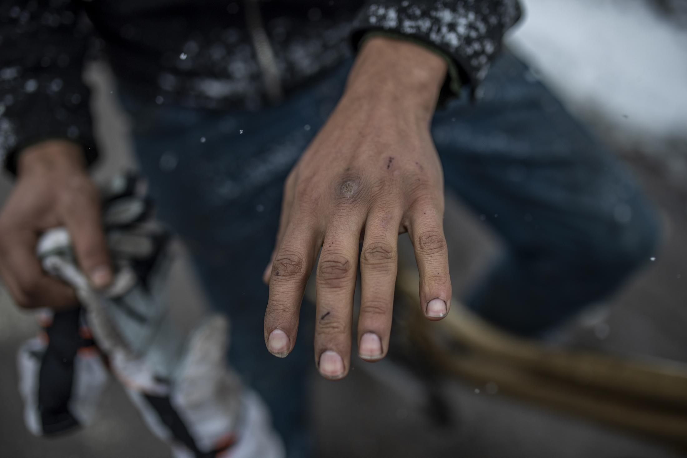 Omar Sharif ense–a su mano helada y llena de cortes tras pasar varias horas cortando madera para poder calentarse en el Sector Vi de la Ca–ada Real