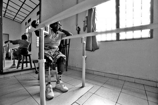 A woman who lost both of her legs and her unborn child , after a mine exploded near her while she was fetching water, getting treatment in a rehabilitation center , Goma, North Kivu.